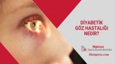 Diyabetik Göz Hastalığı Nedir?