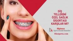 Diş Tellerini Özel Sağlık Sigortası Karşılar mı?