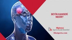 Beyin Kanseri Nedir?