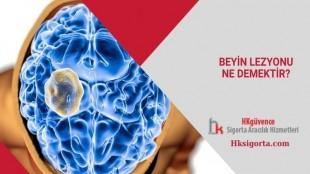 Beyin Lezyonu Ne Demektir?