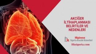 Akciğer İltihaplanması Belirtiler ve Nedenleri