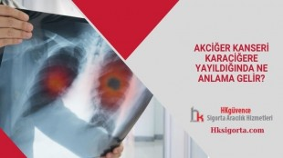 Akciğer Kanseri Karaciğere Yayıldığında Ne Anlama Gelir?