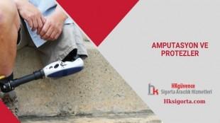 Ampütasyon ve Protezler