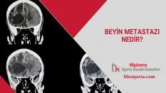 Beyin Metastazı Nedir ve Belirtileri